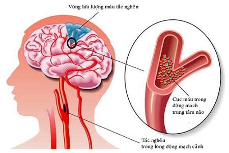 Nấm lim xanh chữa tai biến mạch máu não