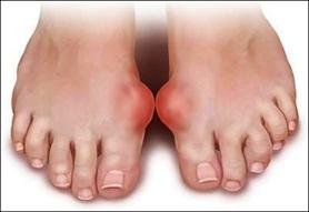 benh gout