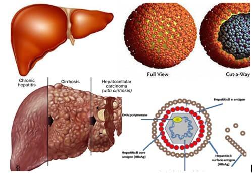 nấm lim xanh chữa bệnh viêm gan b