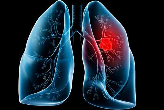 điều trị ung thư phổi hiệu quả tại nhà