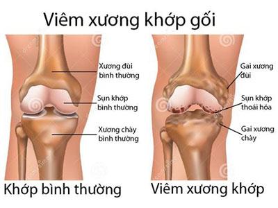 viem-xuong-khop