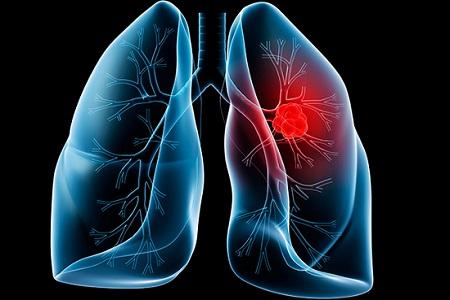 Nấm lim xanh hỗ trợ chữa ung thư phổi